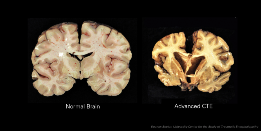 This+displays+Chronic+Traumatic+Encephalopathy.+The+Advance+CTE+is+common+to+many+professional+NFL+players.+